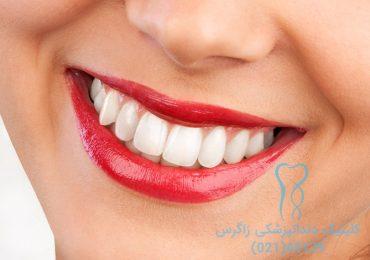 سفید شدن دندان با مواد سفید کننده