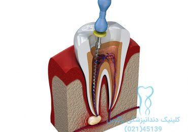 درمان ریشه دندان عصب کشی