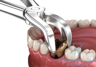 کشیدن دندان در دندانپزکشی